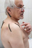 Treatment with leeches shoulder and neck area, back area in the Royalty Free Stock Photos