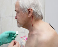 Treatment with leeches shoulder and neck area Royalty Free Stock Images