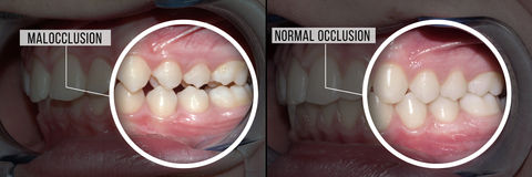 Treatment malocclusion: before and after. Before and after treatment malocclusion Royalty Free Stock Images
