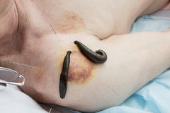Treatment of medical leeches people and acupuncture. Royalty Free Stock Photography