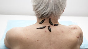 Treatment of people of medical leeches. Stock Image