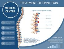 Treatment of Spine Pain Medical Flat Banner. royalty free illustration