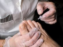 Treatment of therapeutic nail Polish on the feet. Foot therapy. royalty free stock photography