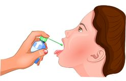 Treatment of the tonsils with an antiseptic Stock Images