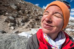 Trekker with burned skin on face is smiling at camera in Khumbu. Valley on a way to Everest Base camp Stock Photography
