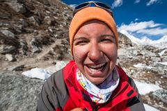 Trekker with burned skin on face is smiling at camera in Khumbu. Valley on a way to Everest Base camp Royalty Free Stock Photo