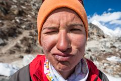 Trekker with burned skin on face is smiling at camera in Khumbu. Valley on a way to Everest Base camp Stock Photo