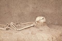 Skeleton. Trepanned skull. Stock Photos