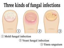 Tres clases de infecciones por hongos Fotos de archivo libres de regalías