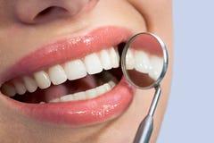 trevliga tänder Arkivbilder