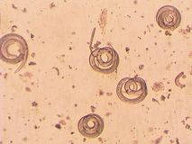 Trichinella spiralis - parasitic worm microscope. Trichinella spiralis - parasitic worm in muscle in microscope. Fear parasitic worm. Lives in the muscles of stock photography
