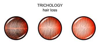 Trichology Queda de cabelo ilustração royalty free