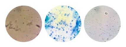 Trichomonas microscopic view sexually transmitted disease STD. Sexually transmitted disease STD : trichomonas view in microscope stock images