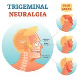 Trigeminal neuralgia medical cross section anatomy vector illustration diagram with facial neural network and pain areas. Head neurology scheme with ophthalmic Stock Photography