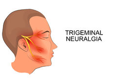 Trigeminal neuralgia. neuroscience Stock Image