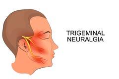 Trigeminusneuralgie neurologie stock abbildung