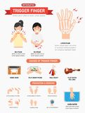 Trigger finger infographic. Vector illustration Royalty Free Stock Photography