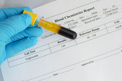Triglyceride testing result: Normal. Blood sample with triglyceride testing normal result royalty free stock photos