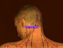 Acupuncture Point TE17 Yifeng, 3D Illustration, Brown Background stock photography