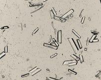 Triple phosphate crystals. In human urine sediment Royalty Free Stock Photo