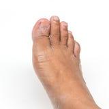 Trockene Füße stockbild