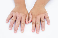 Trockene Hände, Schale, Kontaktdermatitis, Mykosen, Haut inf lizenzfreies stockfoto