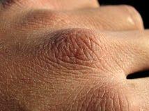 Trockene Haut lizenzfreie stockbilder