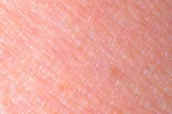 Trockene Haut Stockfoto