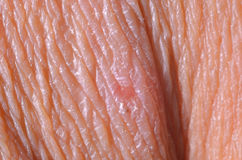 Trockene Haut Lizenzfreies Stockfoto