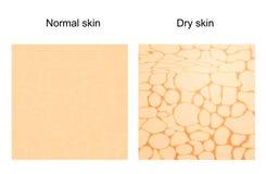 Trockene Haut und normale Haut lizenzfreie abbildung
