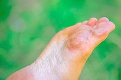 Trocknen Sie entwässerte Haut gleich nach weiblichen Füßen mit Schwielen stockbild