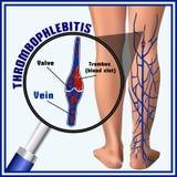Tromboflebitis, coágulos de sangre en las venas embolia trombosis Fotografía de archivo libre de regalías
