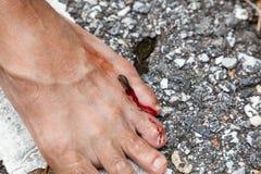 Tropical leech biting human foot Stock Photo