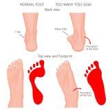 Troppe dita del piede Fotografia Stock