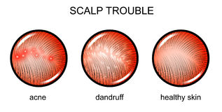 Troubled scalp. dermatology. Vector illustration of a problematic scalp. dermatology royalty free illustration
