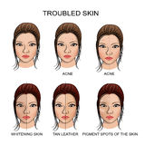 Troubled skin and healthy skin Royalty Free Stock Images