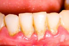 Tártaro y placa dentales Fotos de archivo libres de regalías