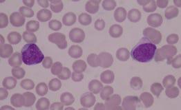 Tryckvågceller på röda blodceller royaltyfria foton