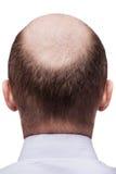 Tête chauve d'homme Photos stock