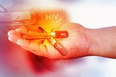 Tube de collection de sang avec l'essai d'HIV Photographie stock