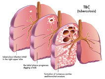 Tubercolosi illustrazione di stock