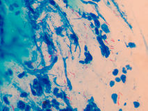 Tubercolosi del microbatterio dei globuli rossi fotografie stock libere da diritti