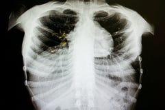 Tubercolosi polmonare immagine stock
