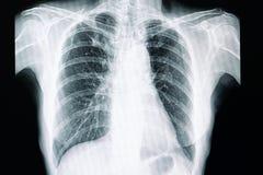 Tubercolosi polmonare immagini stock libere da diritti