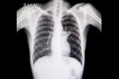 Tubercolosi polmonare Immagini Stock