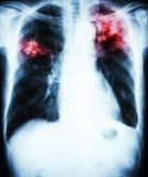 Tubercolosi polmonare fotografie stock