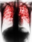 Tubercolosi polmonare fotografia stock