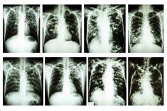Tubercolosi polmonare dell'esame radiografico del torace fotografia stock libera da diritti