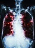 Tubercolosi polmonare esame radiografico del torace del film del polmone interstiziale che della calcificazione di infiltrazione  fotografia stock