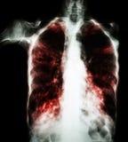 Tubercolosi polmonare (esame radiografico del torace del film: la pianta interstiziale si infiltra entrambe nel polmone dovuto l' immagine stock libera da diritti